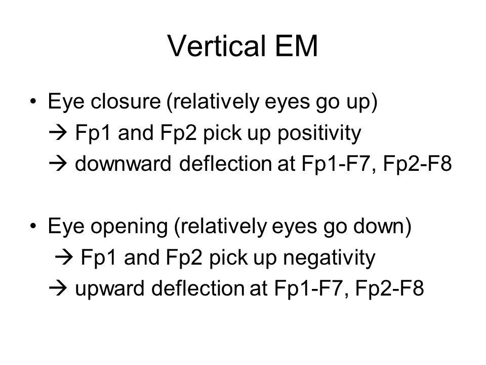 Vertical EM Eye closure (relatively eyes go up)