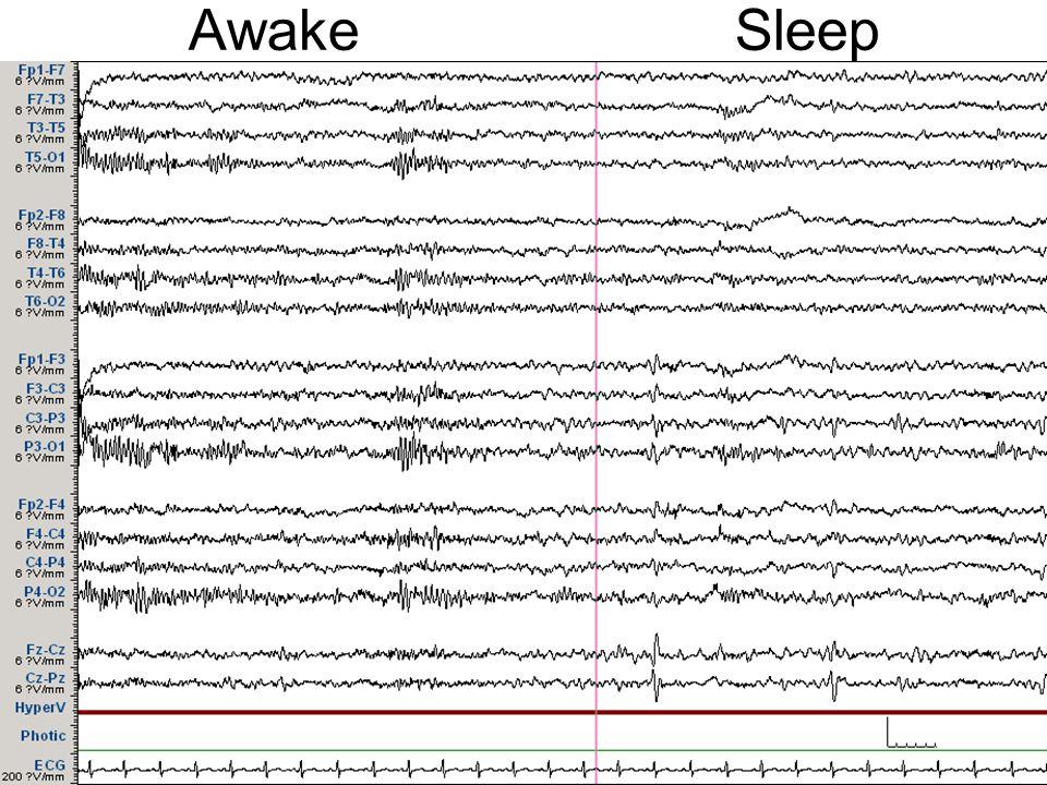 Awake Sleep
