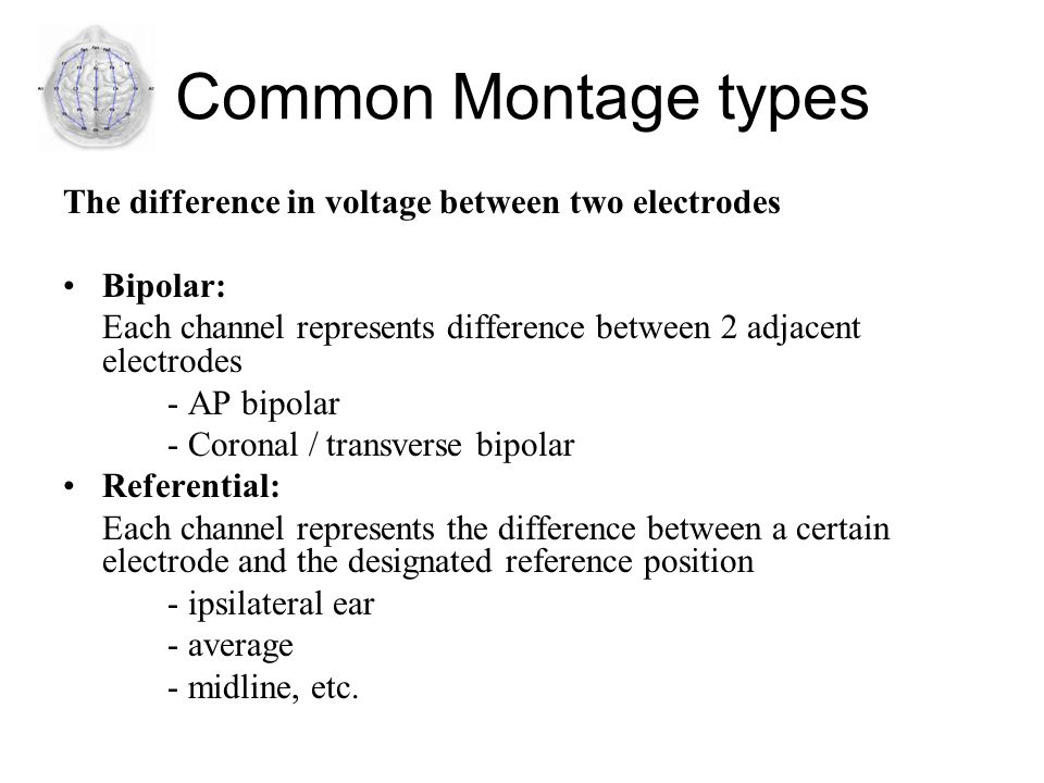 Common Montage types The difference in voltage between two electrodes