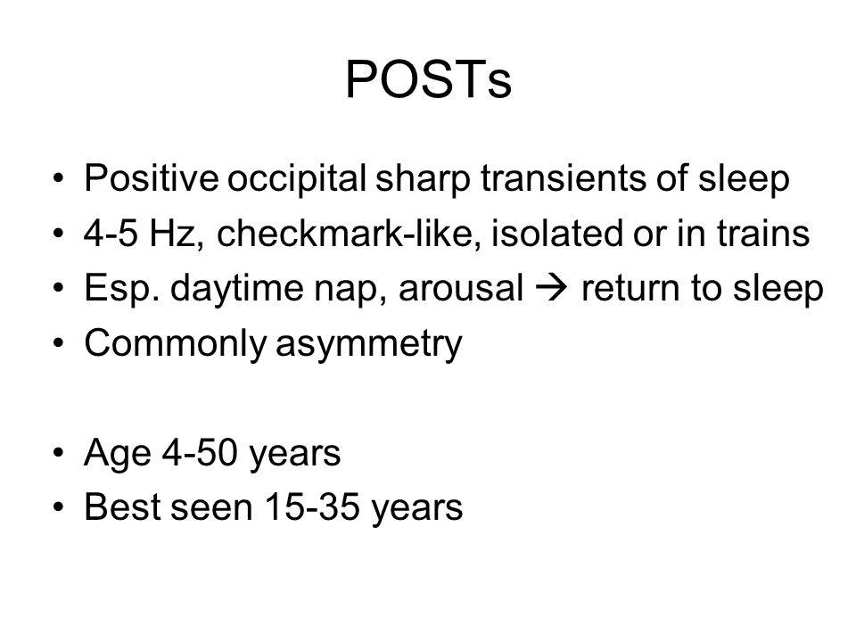 POSTs Positive occipital sharp transients of sleep