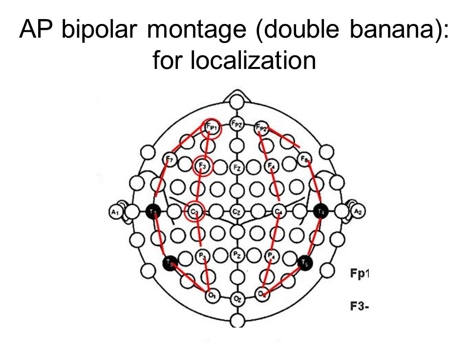 AP bipolar montage (double banana): for localization