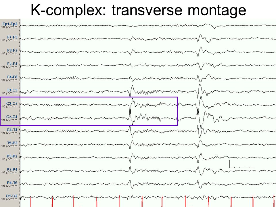 K-complex: transverse montage