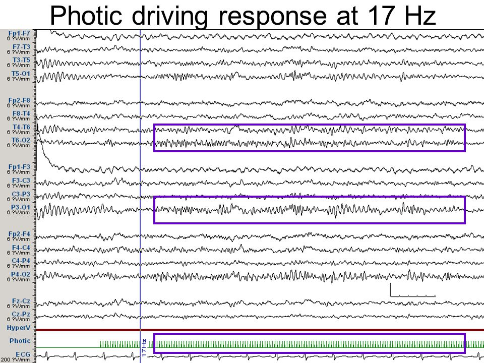Photic driving response at 17 Hz