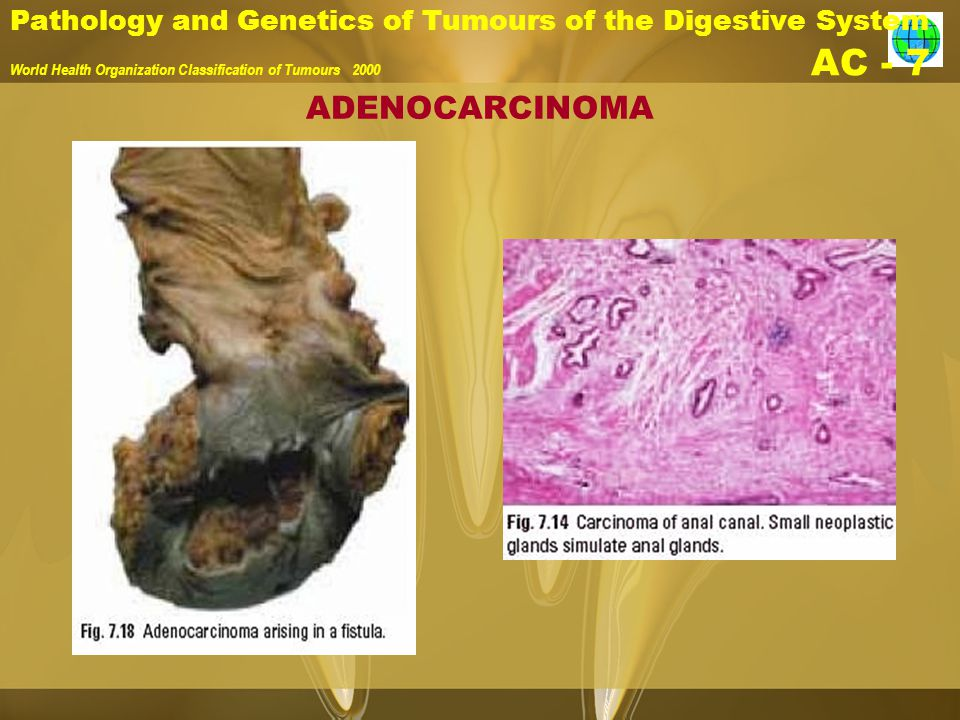 Pathology and Genetics of Tumours of the Digestive System World Health Organization Classification of Tumours 2000 AC - 7