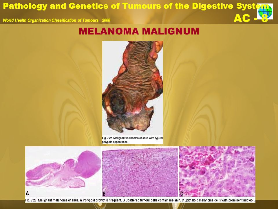 Pathology and Genetics of Tumours of the Digestive System World Health Organization Classification of Tumours 2000 AC - 8