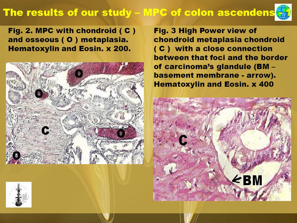 The results of our study – MPC of colon ascendens - 1