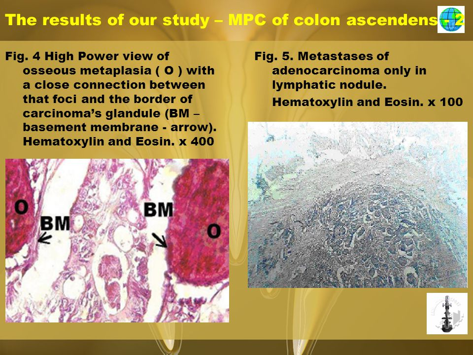 The results of our study – MPC of colon ascendens - 2