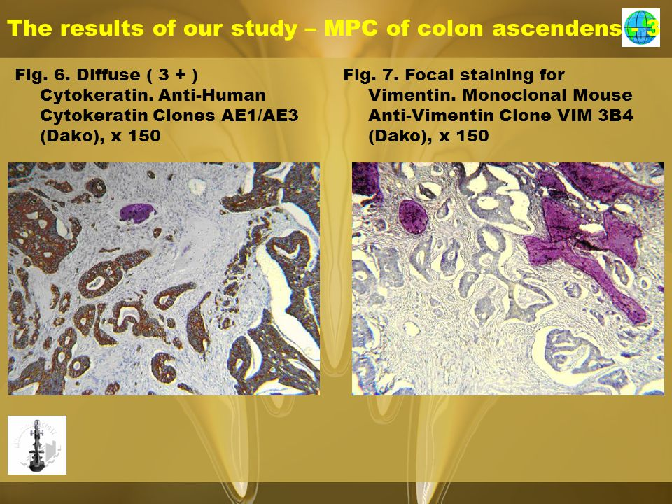 The results of our study – MPC of colon ascendens - 3