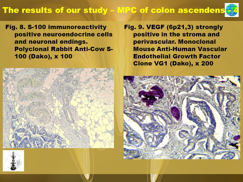 The results of our study – MPC of colon ascendens - 4