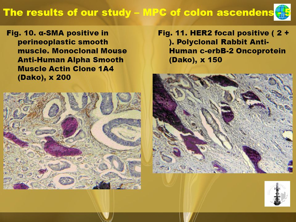 The results of our study – MPC of colon ascendens - 5