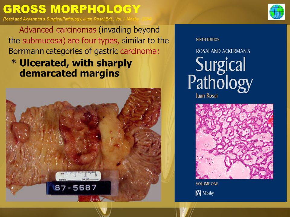 GROSS MORPHOLOGY Rosai and Ackerman's SurgicalPathology, Juan Rosaj Edt., Vol. I, Mosby. (2004)