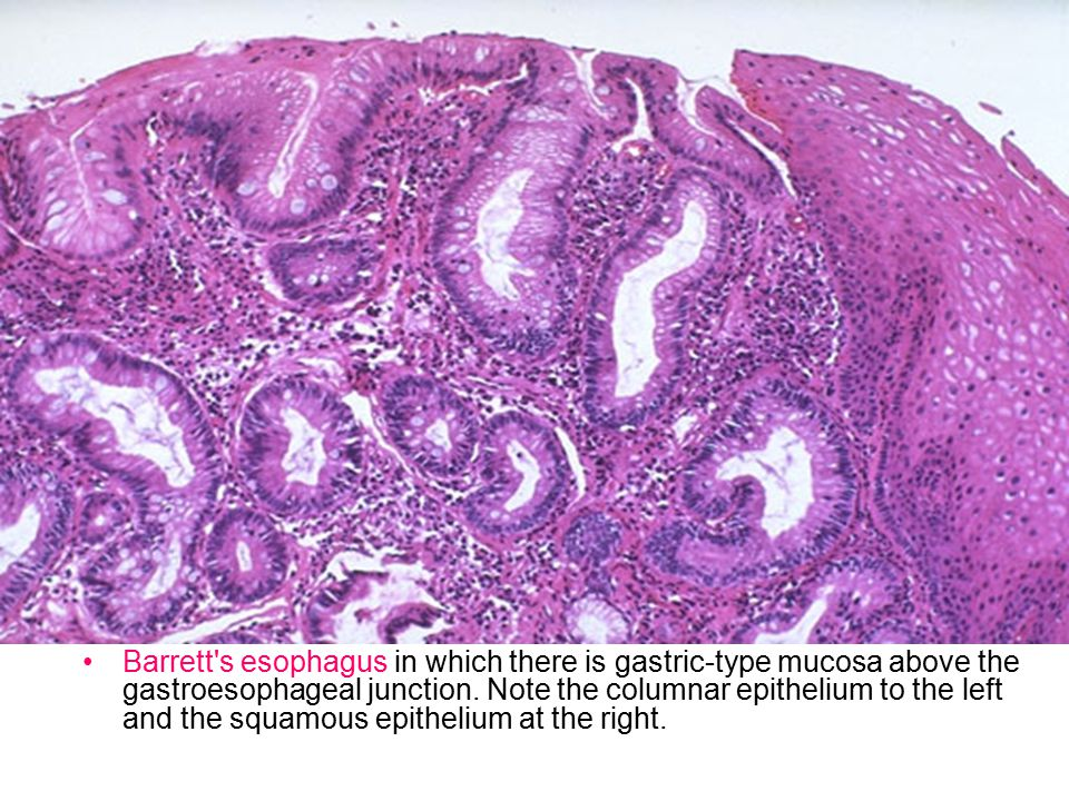 Barrett s esophagus in which there is gastric-type mucosa above the gastroesophageal junction.