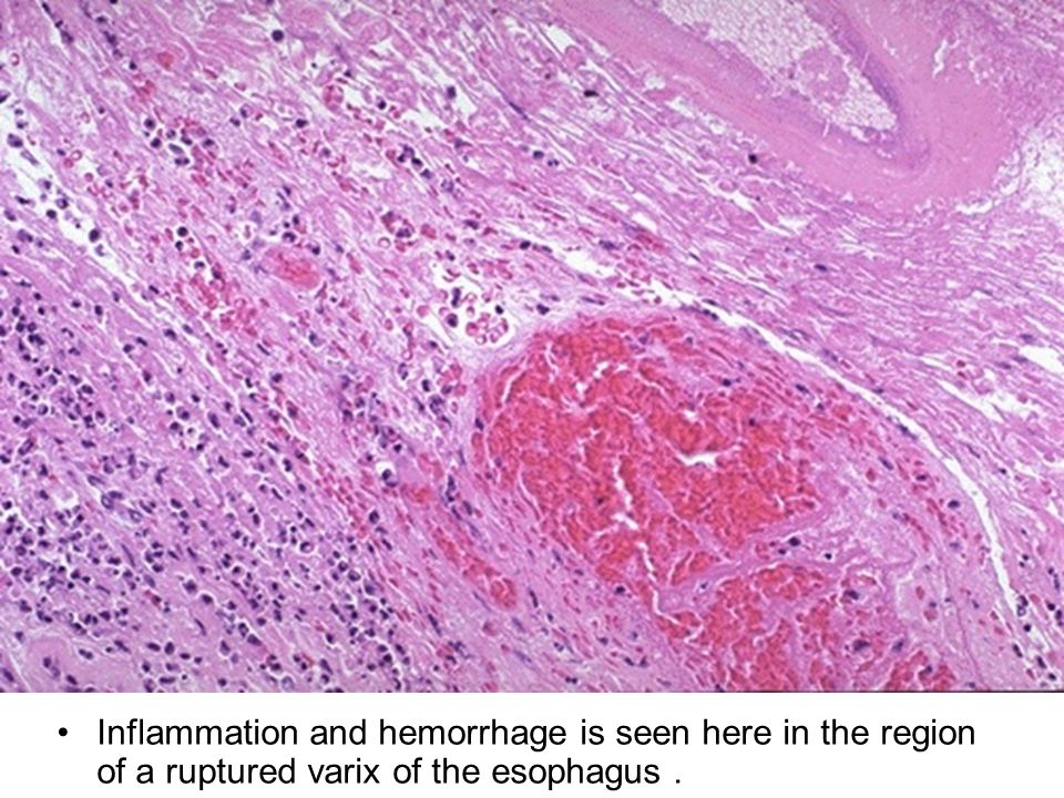 Inflammation and hemorrhage is seen here in the region of a ruptured varix of the esophagus.