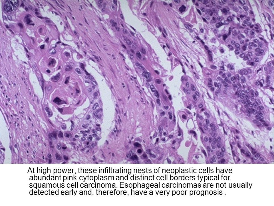 At high power, these infiltrating nests of neoplastic cells have abundant pink cytoplasm and distinct cell borders typical for squamous cell carcinoma.
