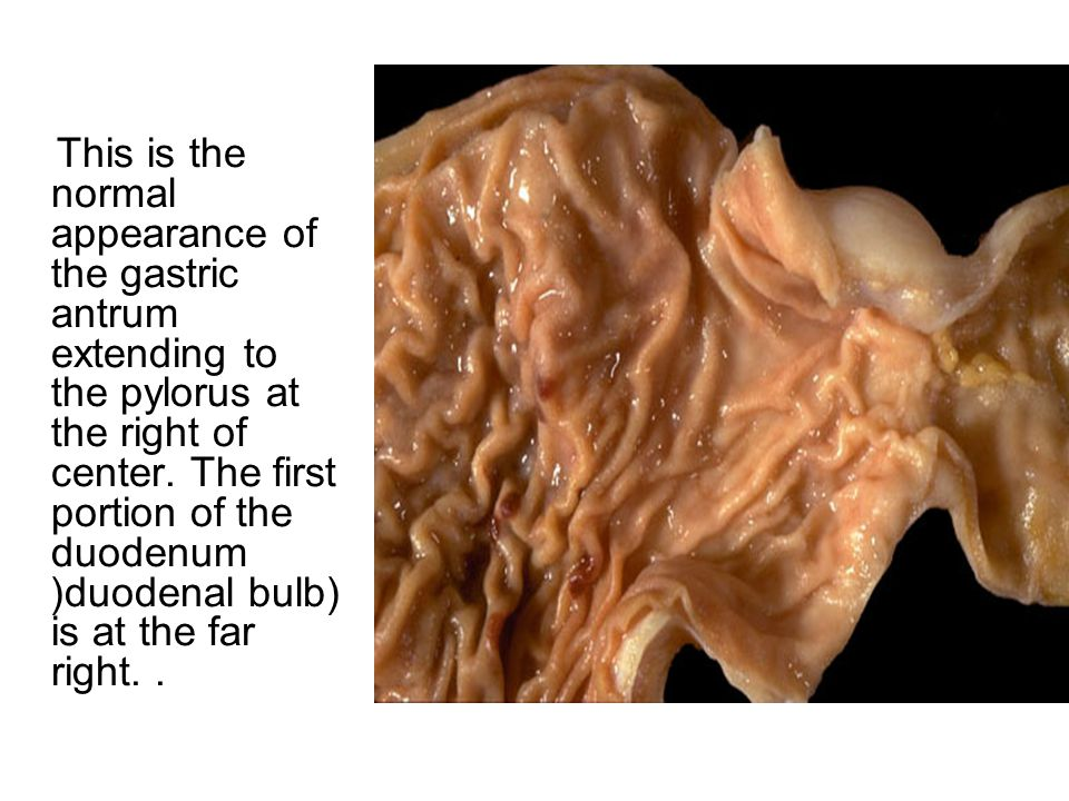 This is the normal appearance of the gastric antrum extending to the pylorus at the right of center.