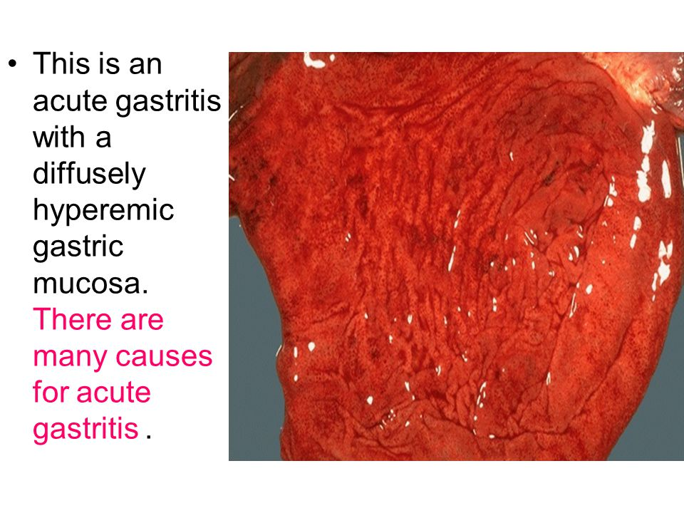 This is an acute gastritis with a diffusely hyperemic gastric mucosa