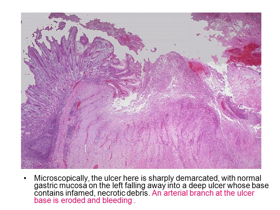 Microscopically, the ulcer here is sharply demarcated, with normal gastric mucosa on the left falling away into a deep ulcer whose base contains infamed, necrotic debris.
