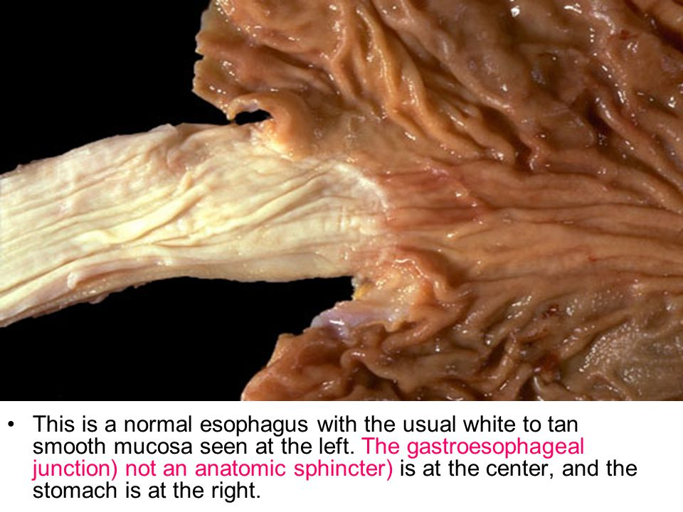 This is a normal esophagus with the usual white to tan smooth mucosa seen at the left.