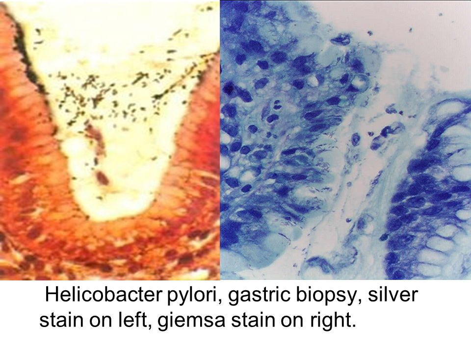 Helicobacter pylori, gastric biopsy, silver stain on left, giemsa stain on right.