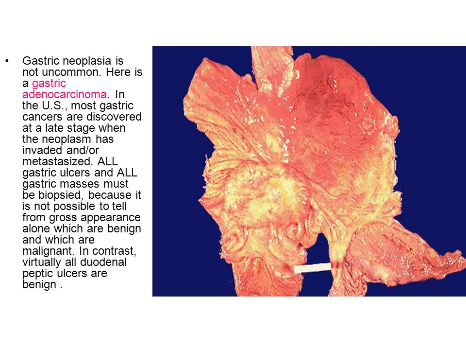 Gastric neoplasia is not uncommon. Here is a gastric adenocarcinoma