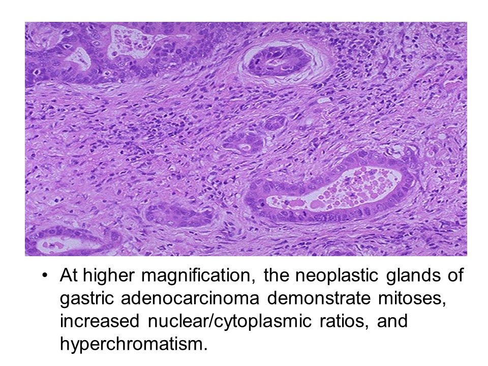 At higher magnification, the neoplastic glands of gastric adenocarcinoma demonstrate mitoses, increased nuclear/cytoplasmic ratios, and hyperchromatism.