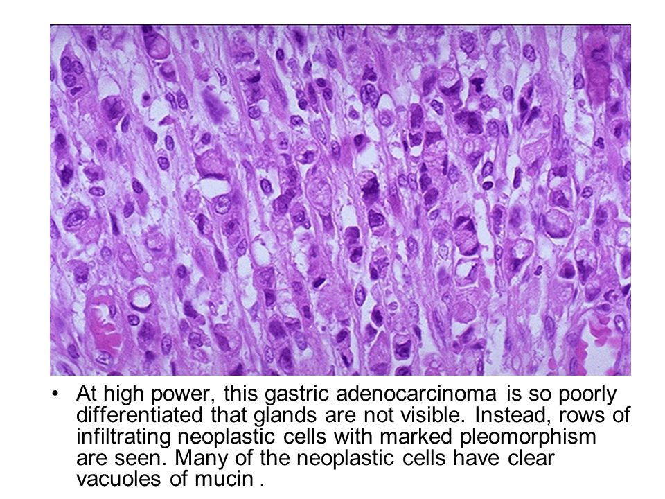 At high power, this gastric adenocarcinoma is so poorly differentiated that glands are not visible.