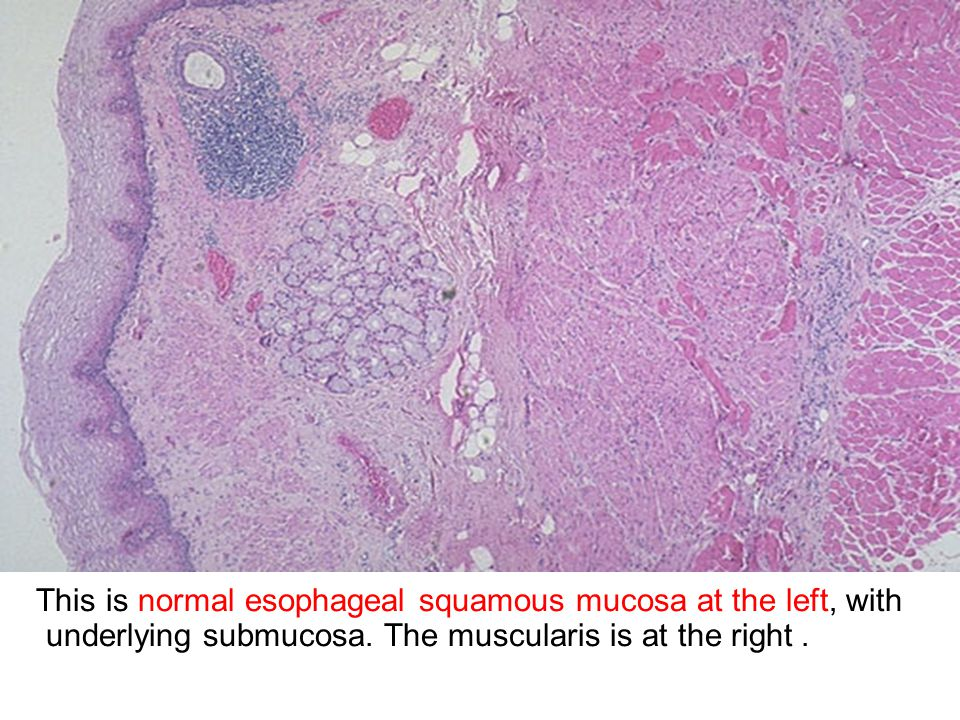 This is normal esophageal squamous mucosa at the left, with underlying submucosa.