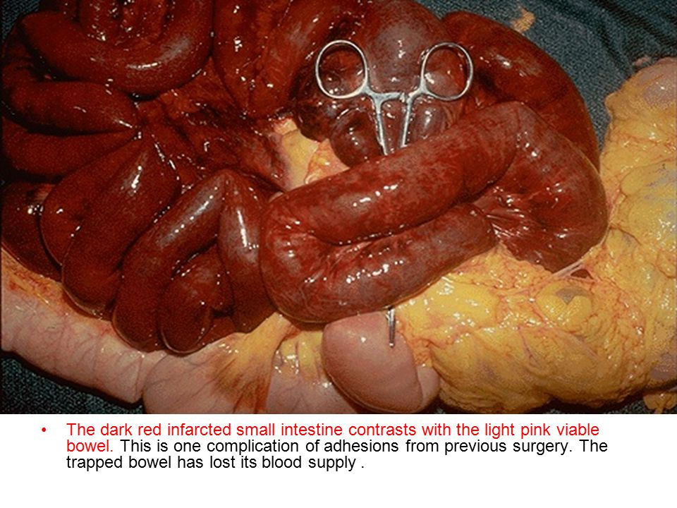 The dark red infarcted small intestine contrasts with the light pink viable bowel.