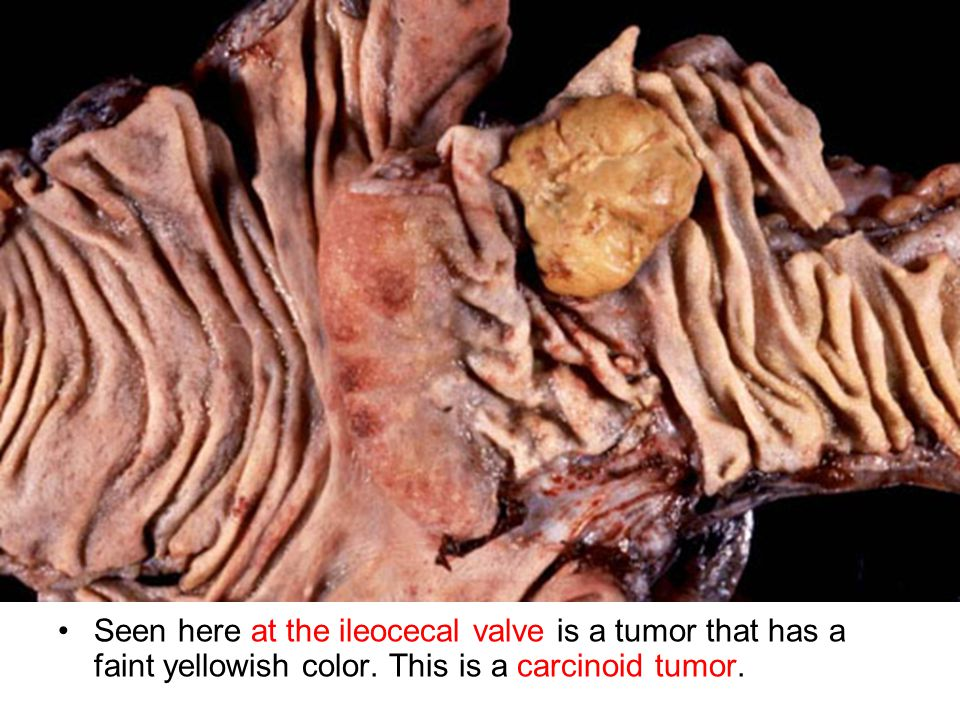 Seen here at the ileocecal valve is a tumor that has a faint yellowish color.