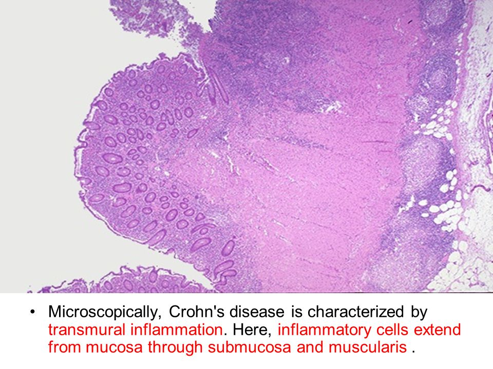 Microscopically, Crohn s disease is characterized by transmural inflammation.