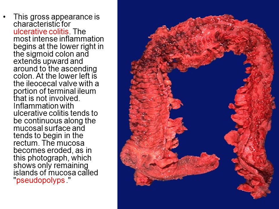 This gross appearance is characteristic for ulcerative colitis