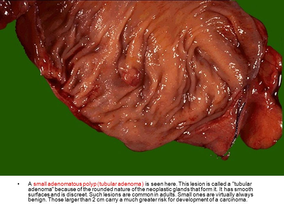 A small adenomatous polyp) tubular adenoma ( is seen here