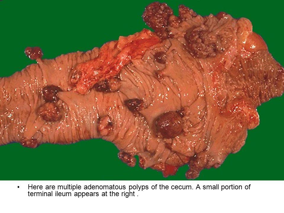 Here are multiple adenomatous polyps of the cecum