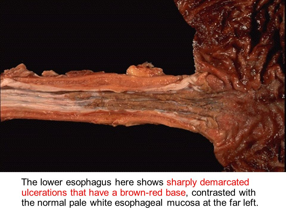The lower esophagus here shows sharply demarcated ulcerations that have a brown-red base, contrasted with the normal pale white esophageal mucosa at the far left.