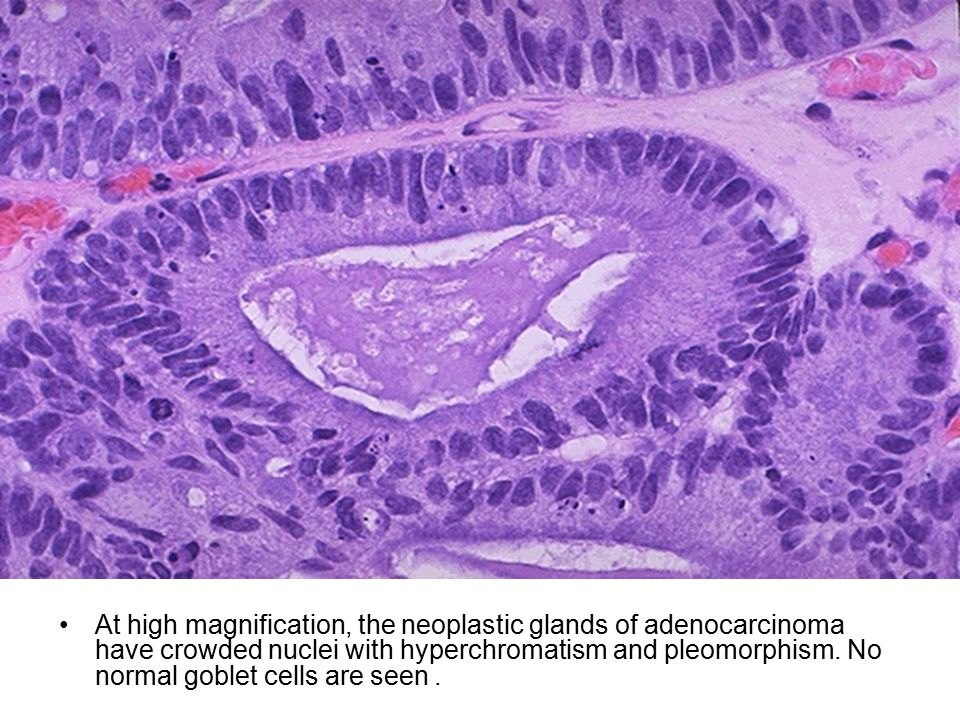 At high magnification, the neoplastic glands of adenocarcinoma have crowded nuclei with hyperchromatism and pleomorphism.