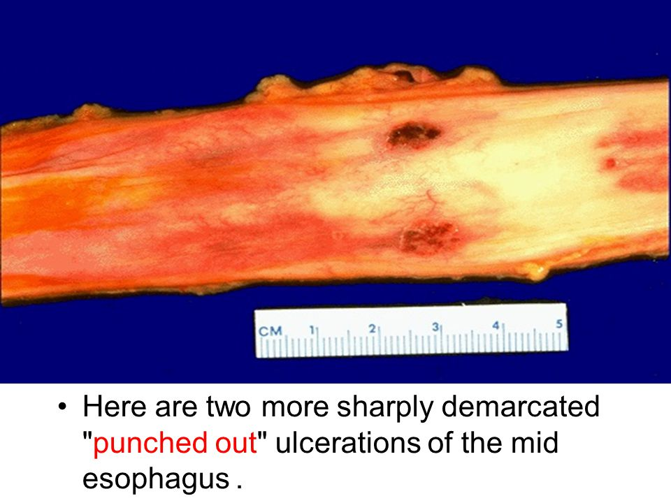 Here are two more sharply demarcated punched out ulcerations of the mid esophagus.