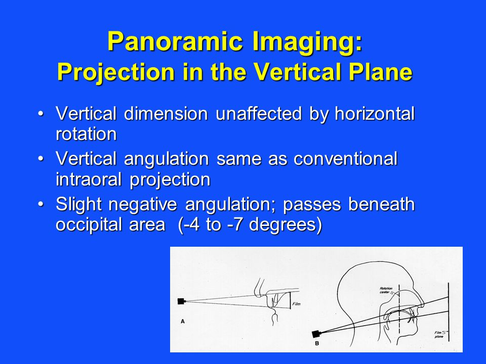 Panoramic Imaging: Projection in the Vertical Plane