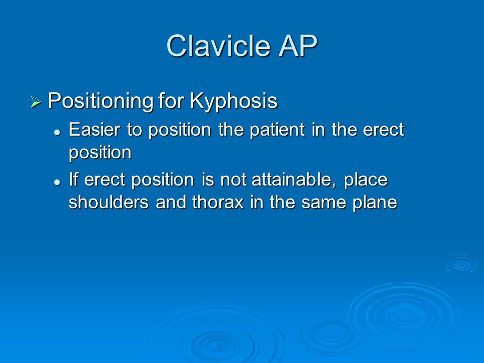 Clavicle AP Positioning for Kyphosis