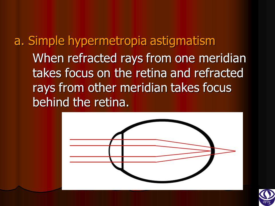 a. Simple hypermetropia astigmatism