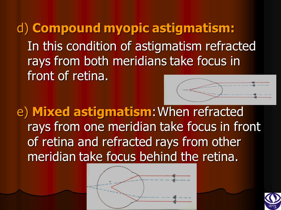 d) Compound myopic astigmatism: