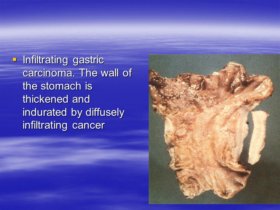 Infiltrating gastric carcinoma
