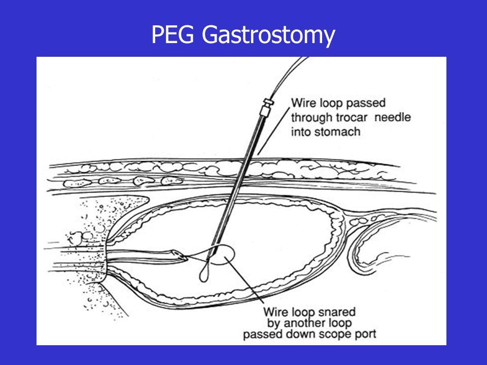 PEG Gastrostomy