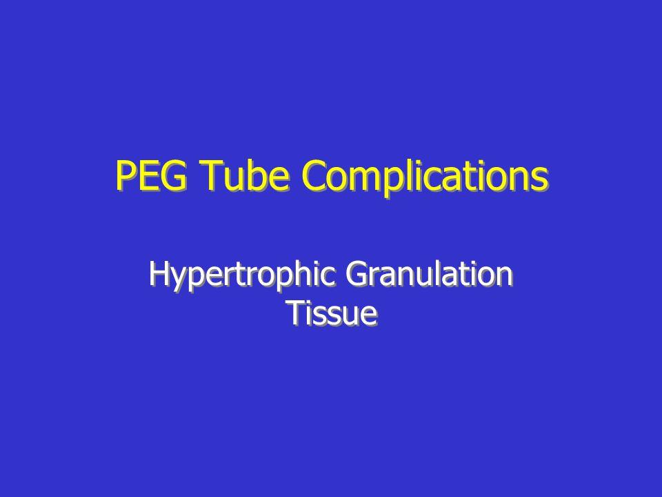 PEG Tube Complications