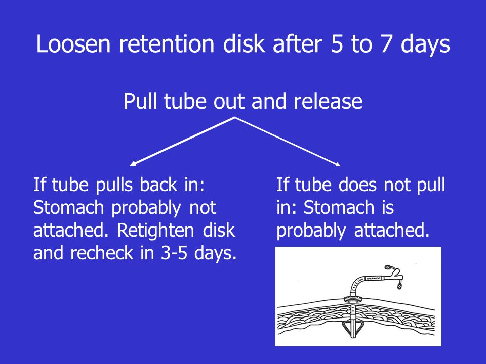 Loosen retention disk after 5 to 7 days