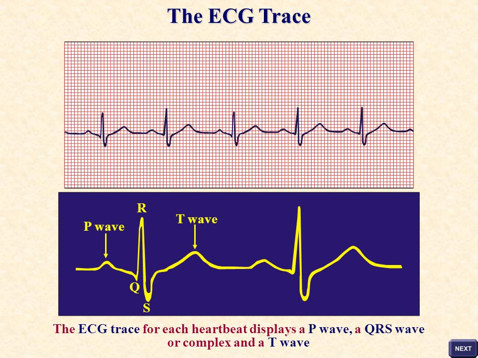The ECG Trace R T wave P wave Q S