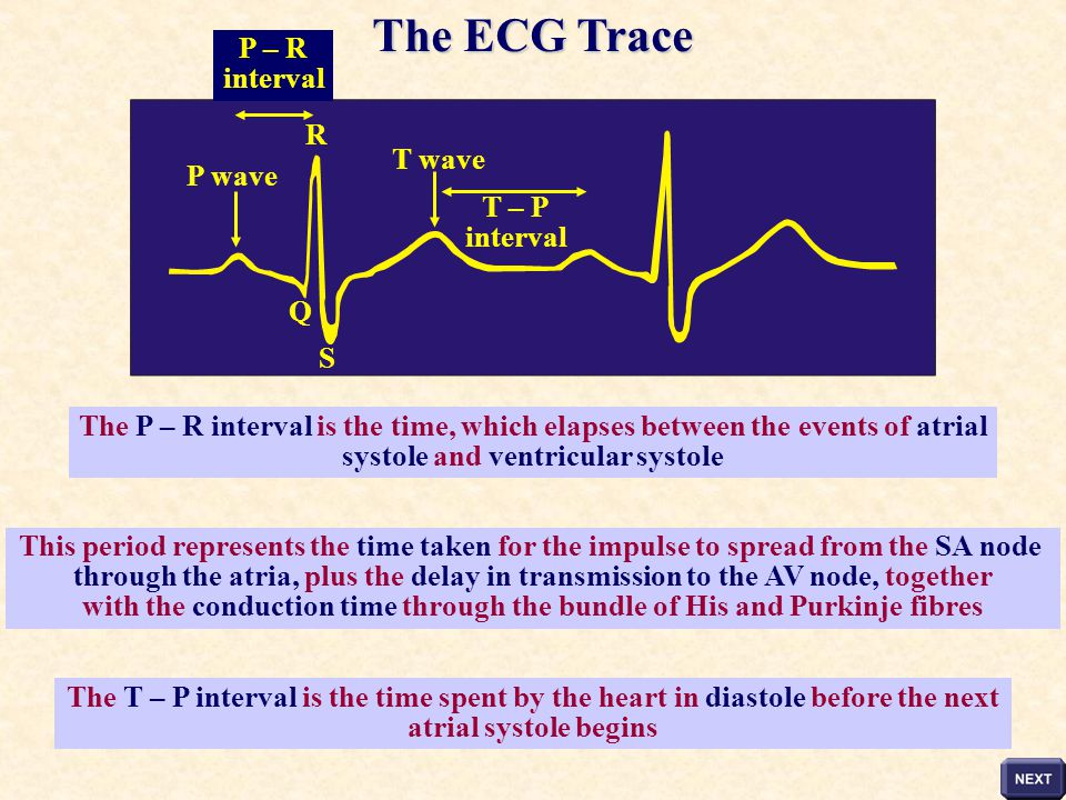 The ECG Trace P – R interval R T wave P wave T – P interval Q S