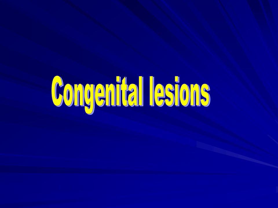 Congenital lesions