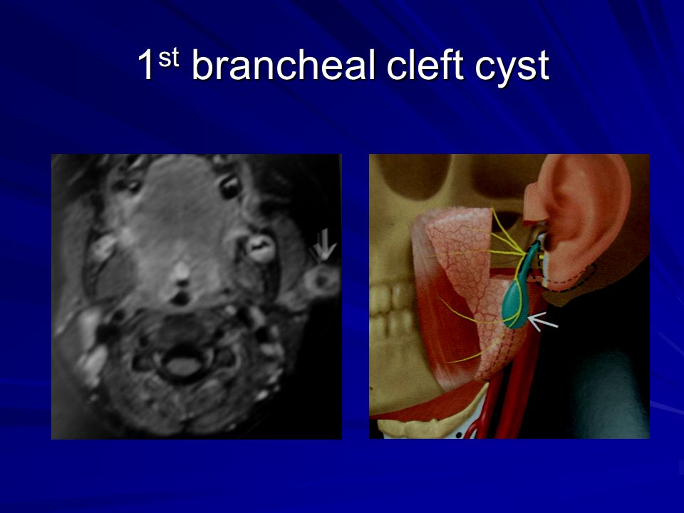 1st brancheal cleft cyst