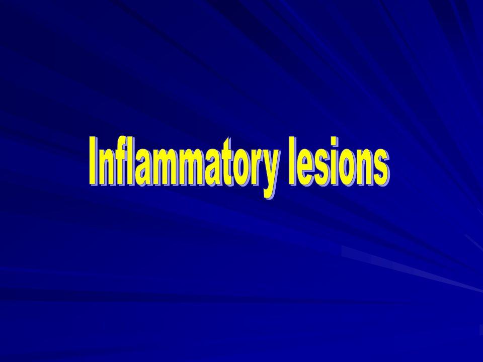 Inflammatory lesions