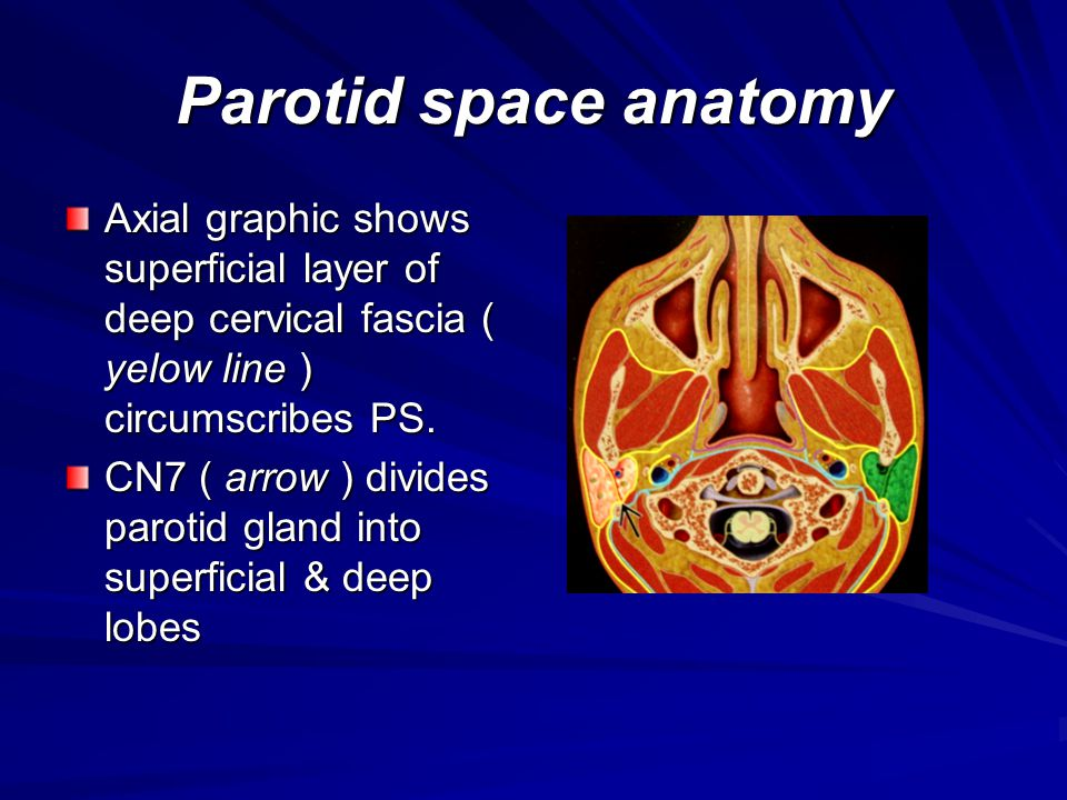 Parotid space anatomy Axial graphic shows superficial layer of deep cervical fascia ( yelow line ) circumscribes PS.